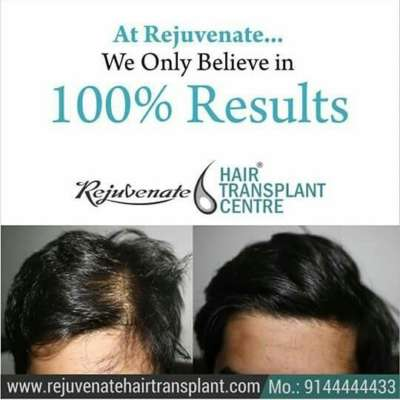 BEST HAIR TRANSPLANT FOR MEN AND WOMEN IN INDIA
