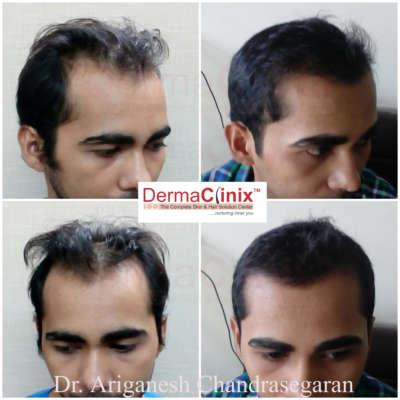 Best Hair Transplant in Chennai