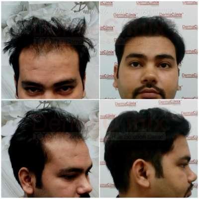 Best Hair Transplantation in Chennai - SC Classifieds