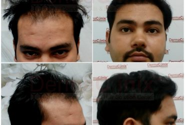 What are the Most Popular Techniques of Hair Transplant in Chennai?