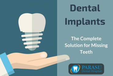 Replace Your Missing Teeth With Dental Implants
