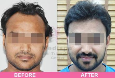 Best Hair Transplant Clinics in Delhi