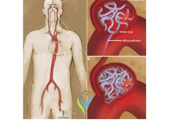 Get Effective Treatment For Brain Disorders