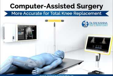 Cost Effective Computer Assisted Knee Replacement
