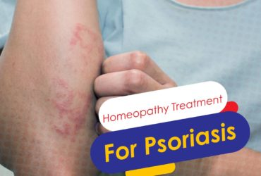Treatment For Psoriasis | Symptoms And Causes Of Psoriasis- Homeolife