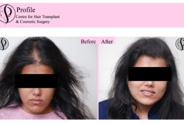 Finest Hair Transplant in India
