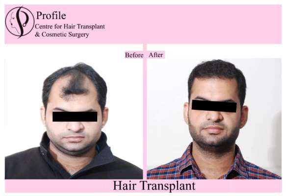 Best Centre For Hair Transplant Surgery in Punjab