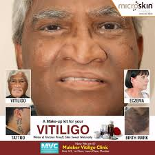 Best Vitiligo Treatment in India | Vitiligo Makeup Cream.