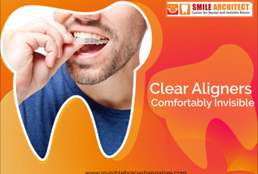 A Better And Clear Way To Straighten Teeth | Invisalign