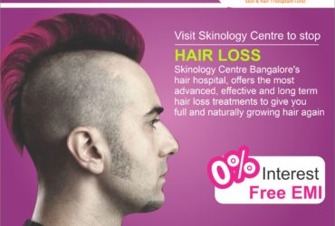 Hair Transplant Cost in Bangalore | FUE Hair Transplant @ Rs.29,999/