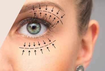 Private: Blepharoplasty surgeon in Mumbai
