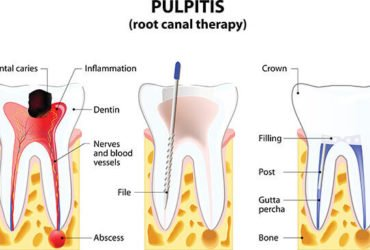 Best Root Canal Treatment in Gurgaon