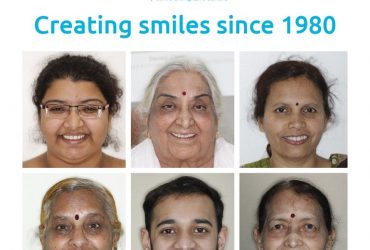 Cosmetic Dentistry treatment In Pune