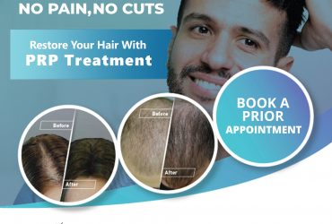 Hair Replantation in Kerala | Hair Growth Treatment in Kerala
