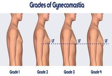 Gynecomastia surgeon in Jaipur