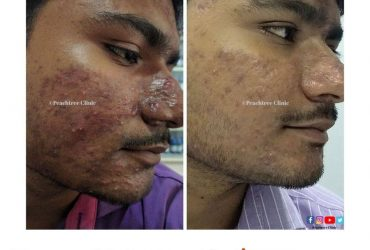 Acne treatment with homeopathy
