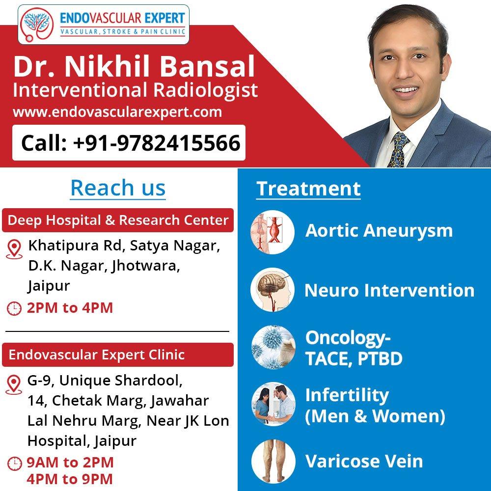 Varicose Veins effective treatment by Varicose veins Doctor in Jaipur |