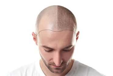 What is a FUE hair transplant?