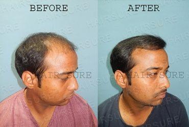 Best Hair Transplant clinic in Hyderabad |  Hitech City